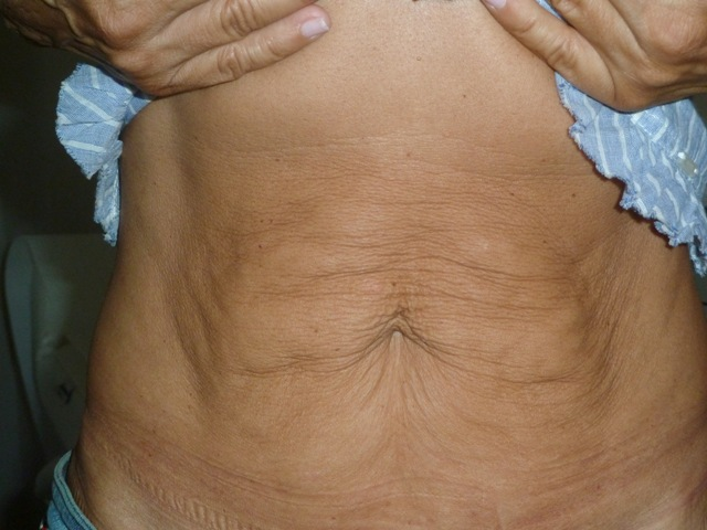 1A- ABDOMEN - BEFORE 15.6.11 MC
