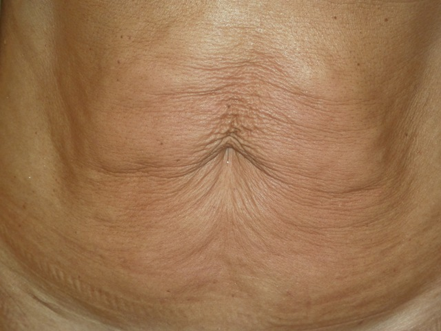 1B - ABDOMEN - BEFORE IMMEDIATELY AFTER 1 TREATMENT15.6.12 MC