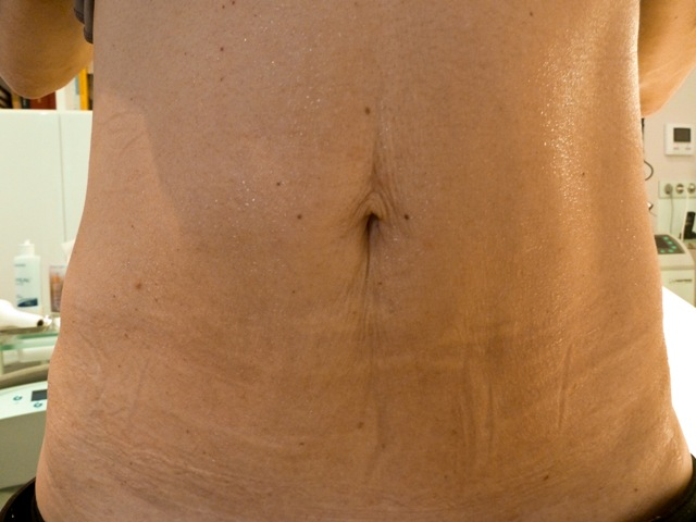 2 ABDOMEN - AFTER standing 21.2.12 MC