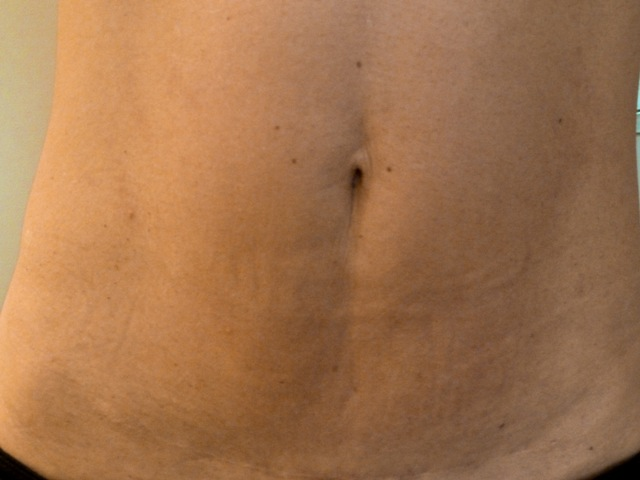 2 ABDOMEN - AFTER standing II 21.2.12 MC