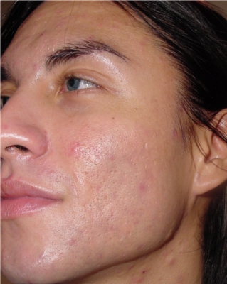 Acne2After sm