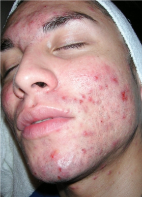acne2before sm